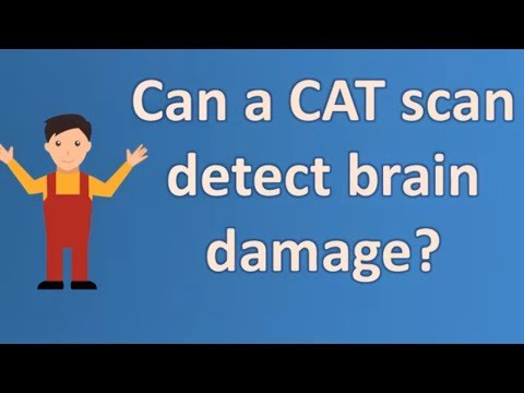 Can a CAT scan detect brain damage ? | Health and Life