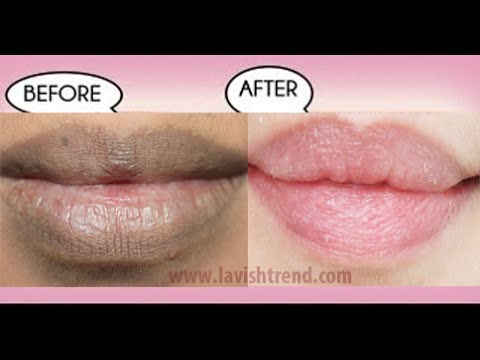 How To Get Natural Pink Lips FAST Using Only 2 INGREDIENTS (
