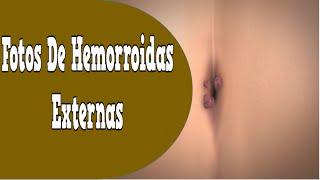 Fotos De Hemorroidas Externas, Sintomas Da Hemorroida, Hemorroida Gravidez, Dieta Para Hemorroidas