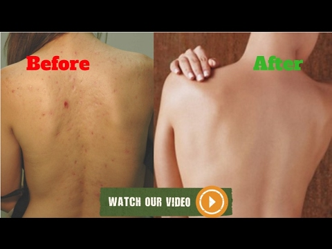 ►How to Remove Back Acne Scars At Home Naturally in 2 Week✔✔