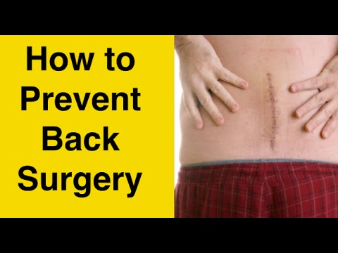 How to Avoid Sciatica Surgery & Herniated Disc Surgery - BEST Disc Herniation Sciatica Treatment