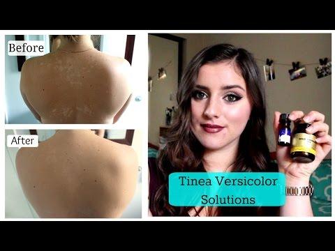 Tinea Versicolor, SOLUTIONS!! |TNBeauty94
