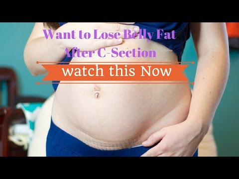 How to Lose Belly fat After C Section #NaturalRemedies