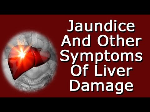 Jaundice And Other Symptoms Of Liver Damage, Disease, And Disorders