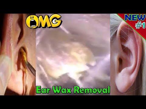 #1 best ear wax removal, best ear wax removal drops, best way to clean ear wax,removal ear wax 2017