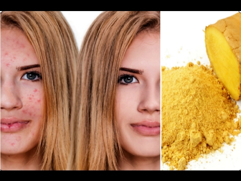 How to Get Rid Of Acne With Ginger