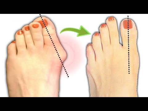 How To Treat Bunions Naturally By As Simple As Following This Few Tips!