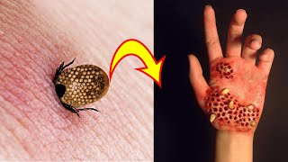 12 Most Dangerous Bugs in the World