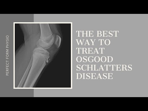 The Best Treatment for Osgood Schlatters Disease - With Lisa Howell