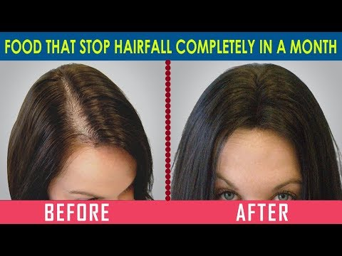 Eat these food and Stop Hair Fall & Promote Hair Growth In A month!!! - Dr. Ramya Ramachandran