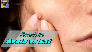 Foods To Avoid And Eat To Get Rid Of Acne Pimples Breakout