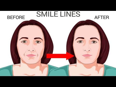 Home Remedies to Treat Smile Lines Remove Mouth Wrinkles At Home
