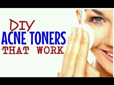 4 ACNE TONERS THAT REALLY WORK | Simple & Natural | Cheap Tip #185