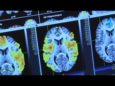 Investigating Drug Abuse: Brain Imaging