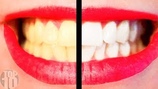 10 Tips For A Perfect Hollywood Smile