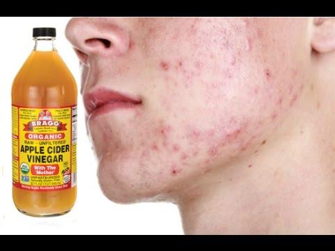 Major Side Effects of Apple Cider Vinegar   Apple Cider Vinegar Weight loss Side Effects