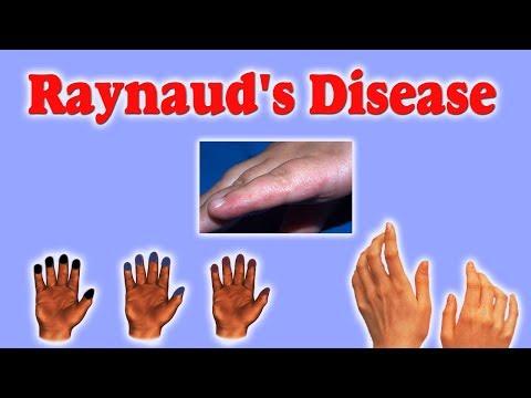 Raynaud Disease - जानिए इस अजीब से रोग का क्या है आयुर्वेद में इलाज।