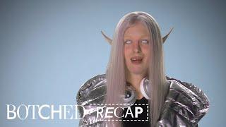 """""""Botched"""" Recap: Season 4, Episode 21   E!"""