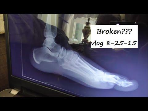 Ankle Injury! Is It Broken?  vlog 8-25-15