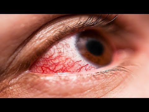 Conjunctivitis Treatment: How to Get Rid of Pink Eye Fast.