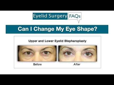 Can I Change my Eye Shape?
