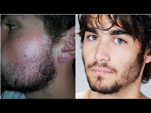 How to Make Facial Hair Grow Faster & Thicker.