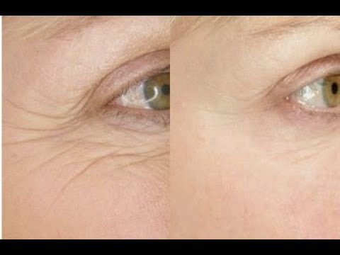 Best Face Yoga Exercise for Eye Wrinkles | FACEROBICS®