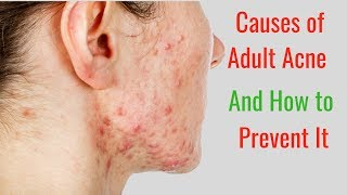 5 Causes of Adult Acne and How to Prevent It