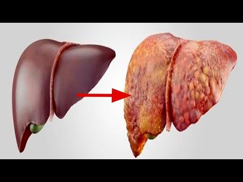 These Foods Are DAMAGING Your Liver