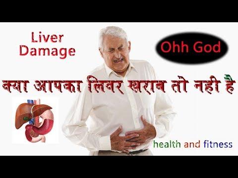 Signs of Liver Damage || liver damage symptoms || liver detox || liver health