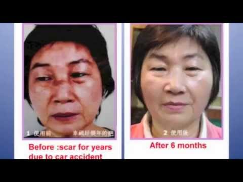 Luminesce Skincare with Instantly Ageless Before and Afters By Jeunesse Global