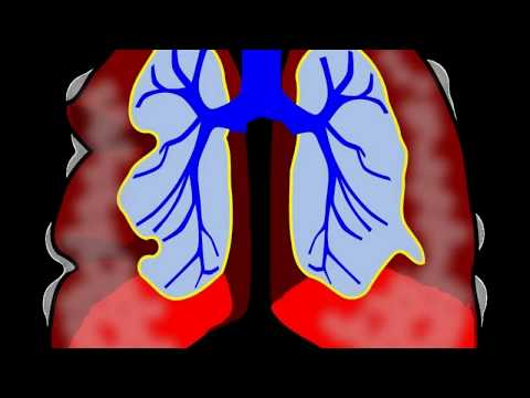 What Is The Treatment For A Chest Infection