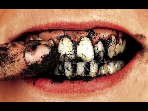 DON'T DO THIS TO YOUR TEETH!