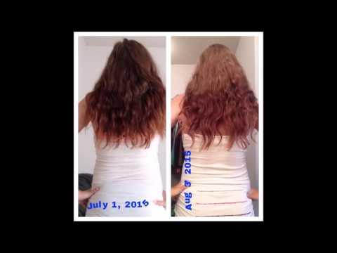 hair growth update! month 1