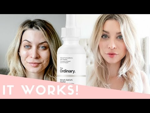 THE ORDINARY Skincare for Healing Acne | What Worked, What Didn't | Joëlle Anello