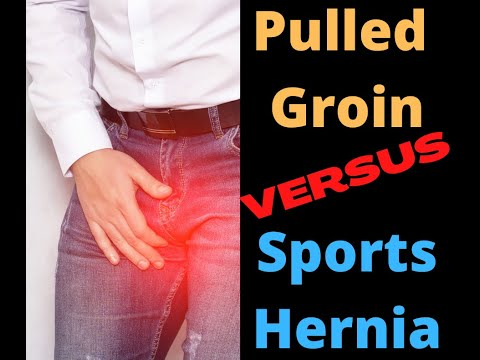 Pulled groin versus sports hernia  | Total Performance Physical Therapy | 215.997.9898