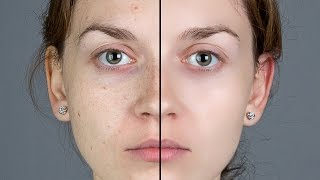 Photoshop Tutorial How To Quickly Smooth Skin And Remove Blemishes Sc