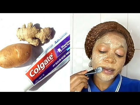 DID YOU KNOW TOOTHPASTE AND POTATO CAN CHANGE YOUR FACE OVERNIGHT REMOVE PIMPLES DARK SPOTS