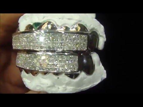 Custom Diamond Princess Cut Grillz 14K White Gold Atlanta Jeweler