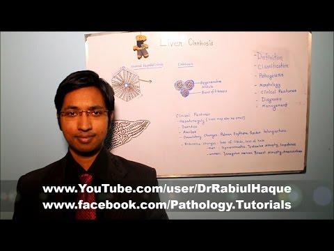 Liver Cirrhosis : Part 2 (HD)