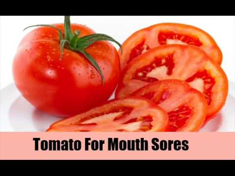 10 Home Remedies For Mouth Sores