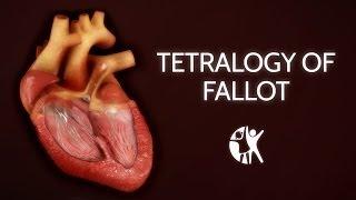 Tetralogy of Fallot | Cincinnati Children's