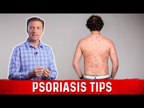 Get Rid of the Cause of Psoriasis Nutritionally