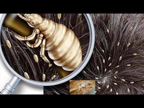 जूँ और लीख हटाने  के सबसे असरदार घरेलु उपाय | How To Get Rid of Lice Naturally
