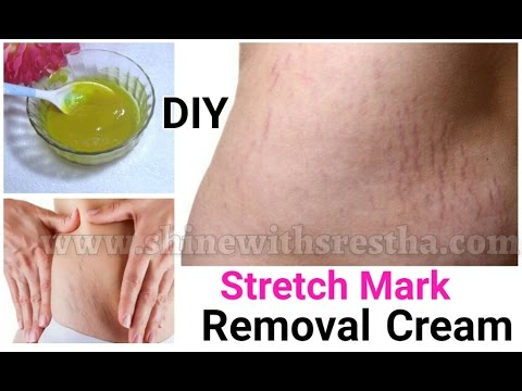 Magical Stretch Mark Removal Cream | How To Remove Stretch Marks Fast At Home | Home Remedies