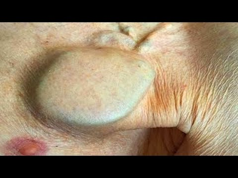Bizarre Medical! Heart Disease, Fissured Tongue, Boils and Abscesses