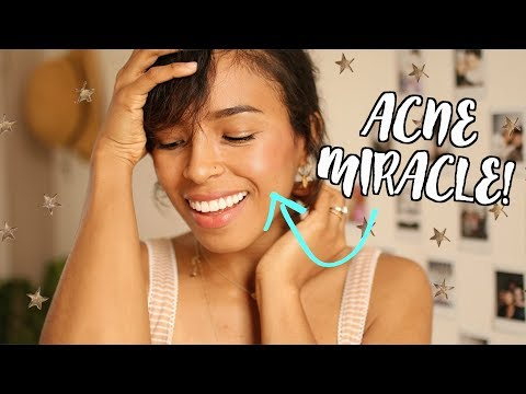 MY MIRACLE ACNE SKINCARE PRODUCTS!