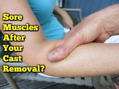 Broken Arm Massage Therapy Excercises 4 PAIN After Cast Removal