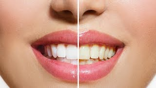 Easiest Methods To Whiten Your Teeth Without Using Chemicals