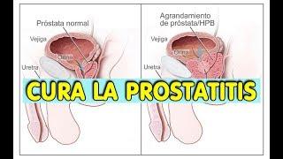 las legumbres irritan la próstata